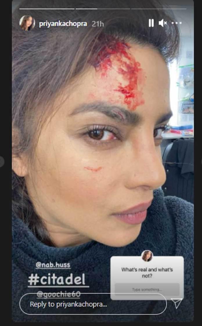 Priyanka Chopra injured on set of Citadel