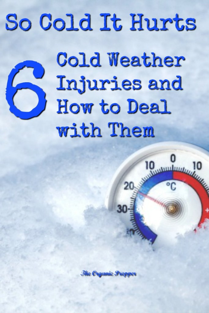 Winter brings its own special set of common injuries. Here is what you need to know to recognize, prevent, and care for a serious, cold weather injury. | The Organic Prepper