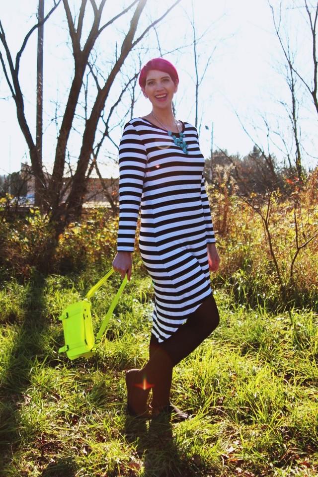striped-dress-photography-01