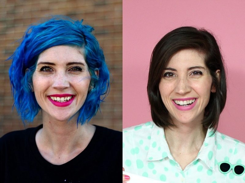 Hannah Rupp The Outfit Repeater Smile Direct Club treatment invisible aligners