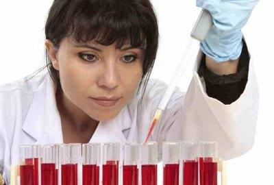 Hematocrit marit: Cum se scade hematocritul?