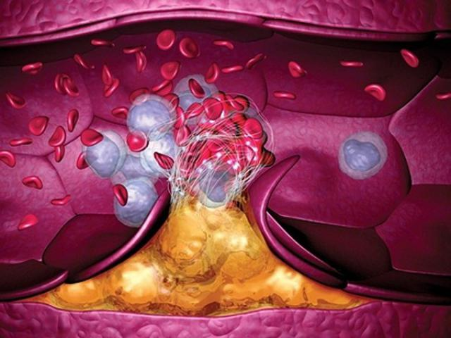 sindromul-antifosfolipidic