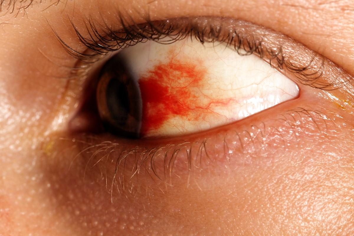tratament cu vase oculare