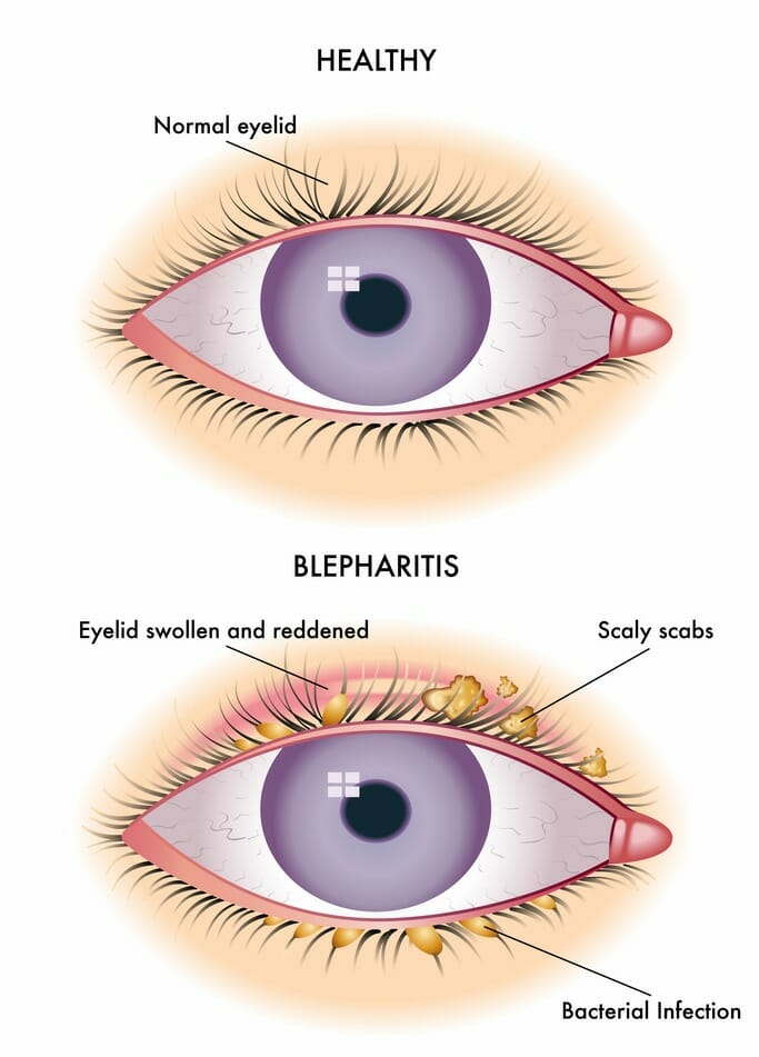 Symptoms of blepharitis include red, dry eyes, blurry vision, watery ...