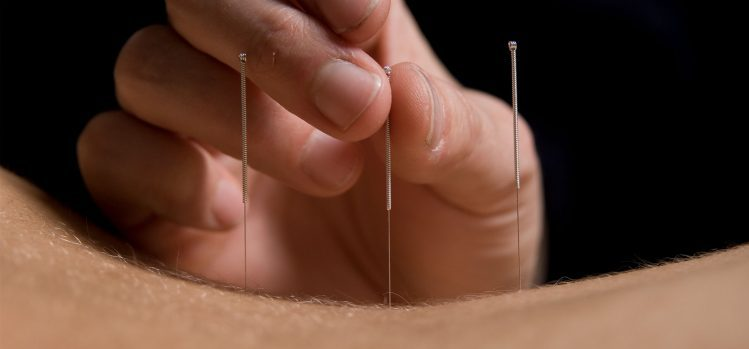 Reiki and Acupuncture