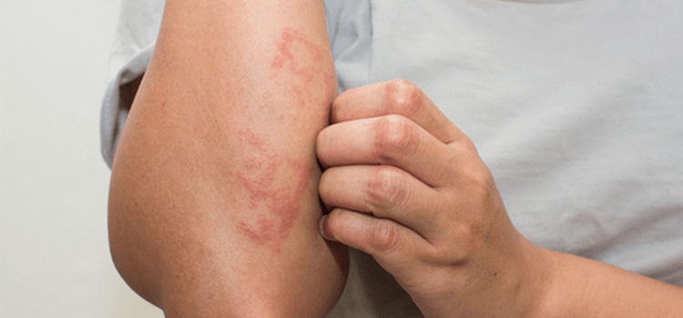 Acupuncture and Eczema