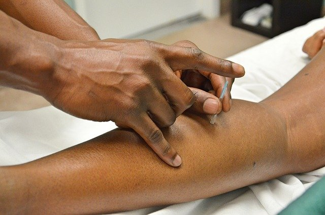 Acupuncture Help with Addiction Recovery