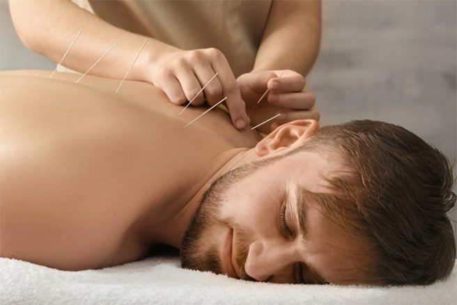 Arizona Acupuncture Treatment