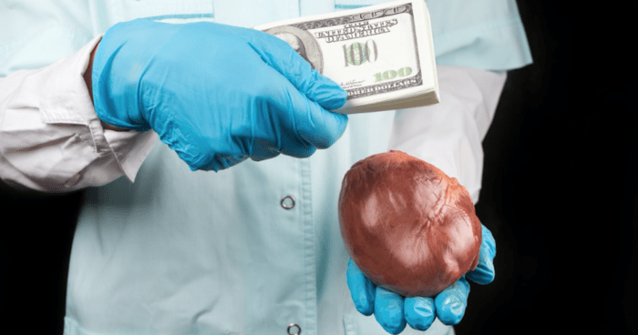human organ sale
