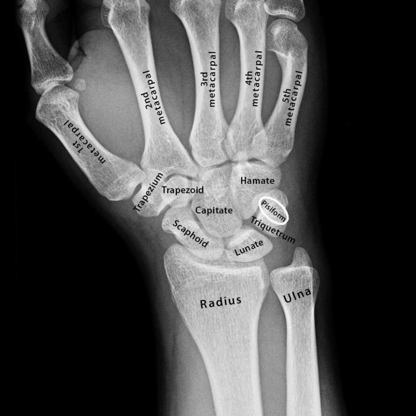 Carpal Bones: Definition, Location, Anatomy, Diagram