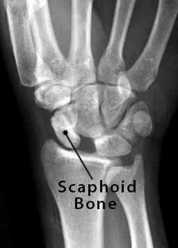 Scaphoid Bone Definition, Location, Anatomy, Diagram | The