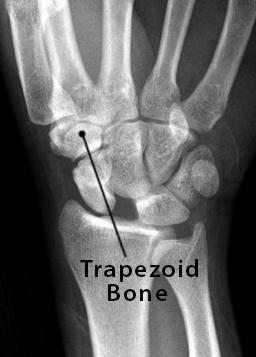 Trapezoid Bone Definition, Location, Anatomy, Diagram   The Skeletal System