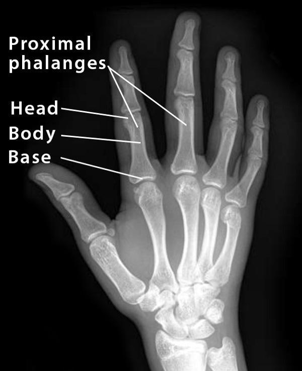 Proximal Phalanx: Definition, Location, Anatomy, Diagram ...