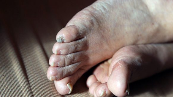 Chiropodist Minoo Shakibai is pleading for ways to help seniors in Ontario receive better footcare.