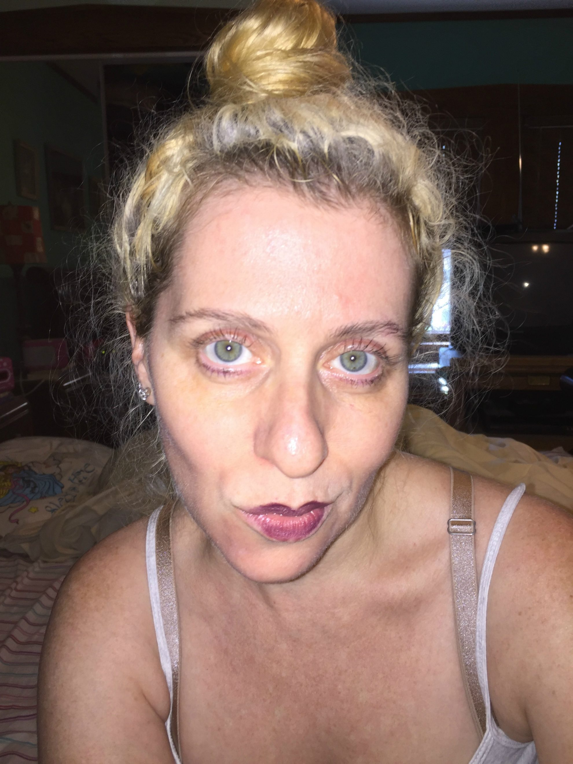 This is Day 2 after I applied Neutrogena Ultra Sheer Liquid Daily Sunscreen Broad Spectrum SPF 70