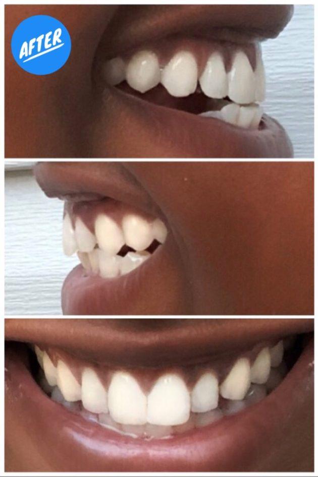 Smile Brilliant T3 Sensitive System