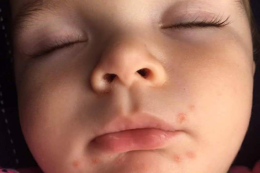 Hot. Love hand foot and mouth disease in infants geiler
