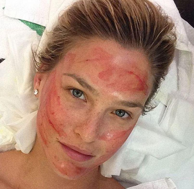 Model Bar Rafaeli has also indulged in a vampire facial