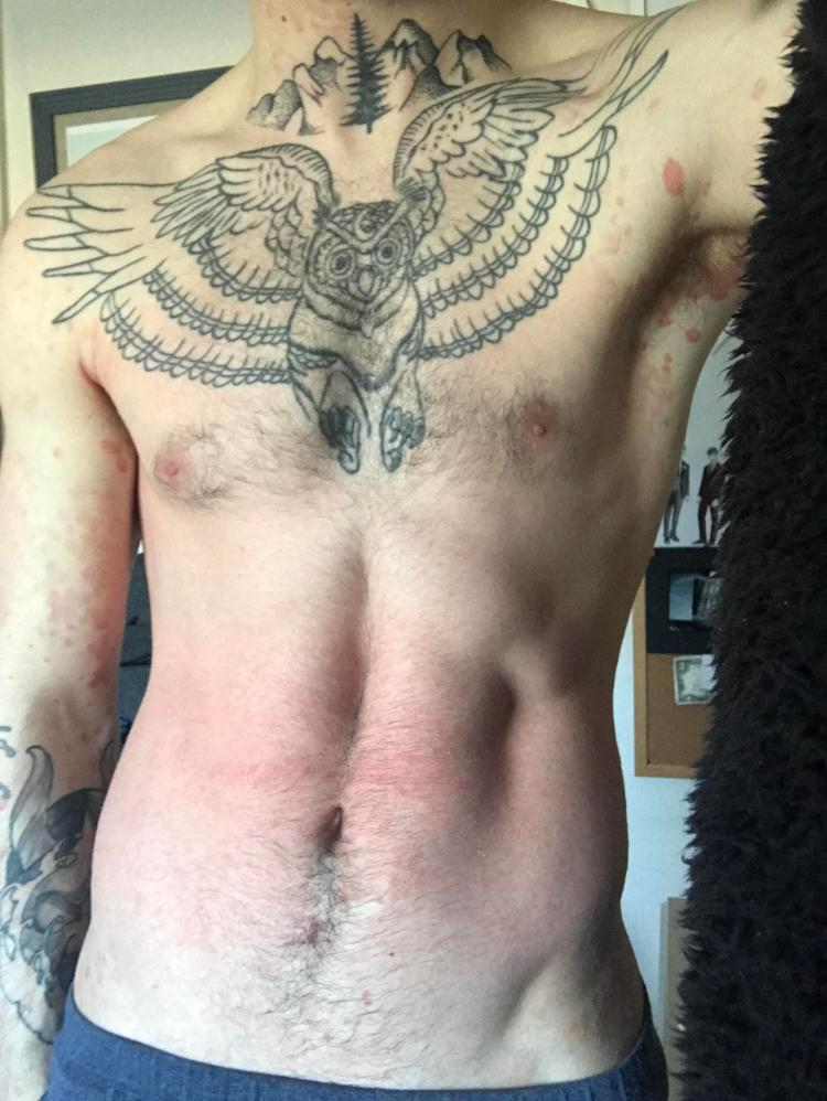Within days Damien noticed his psoriasis had begun to clear up