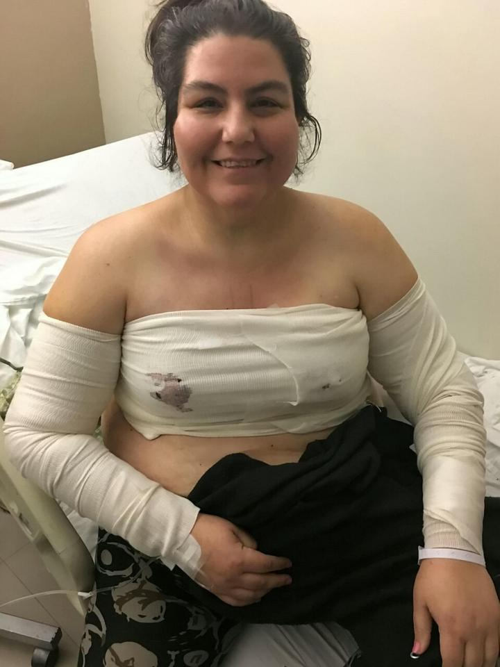 Olga faces six months of recovery after her surgery