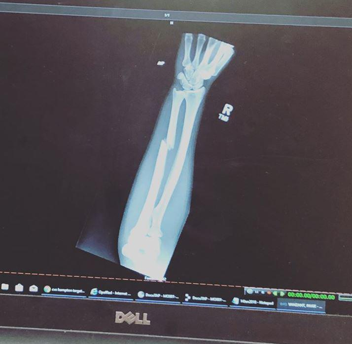 This is the X-Ray from the horror injury suffered by the brave Paige VanZant