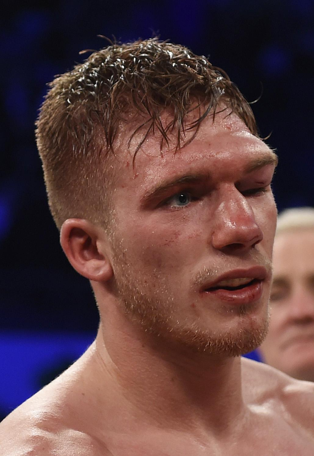 Nick Blackwell was put in an induced coma after suffering a bleed on the brain after a fight with Eubank Jr in 2016
