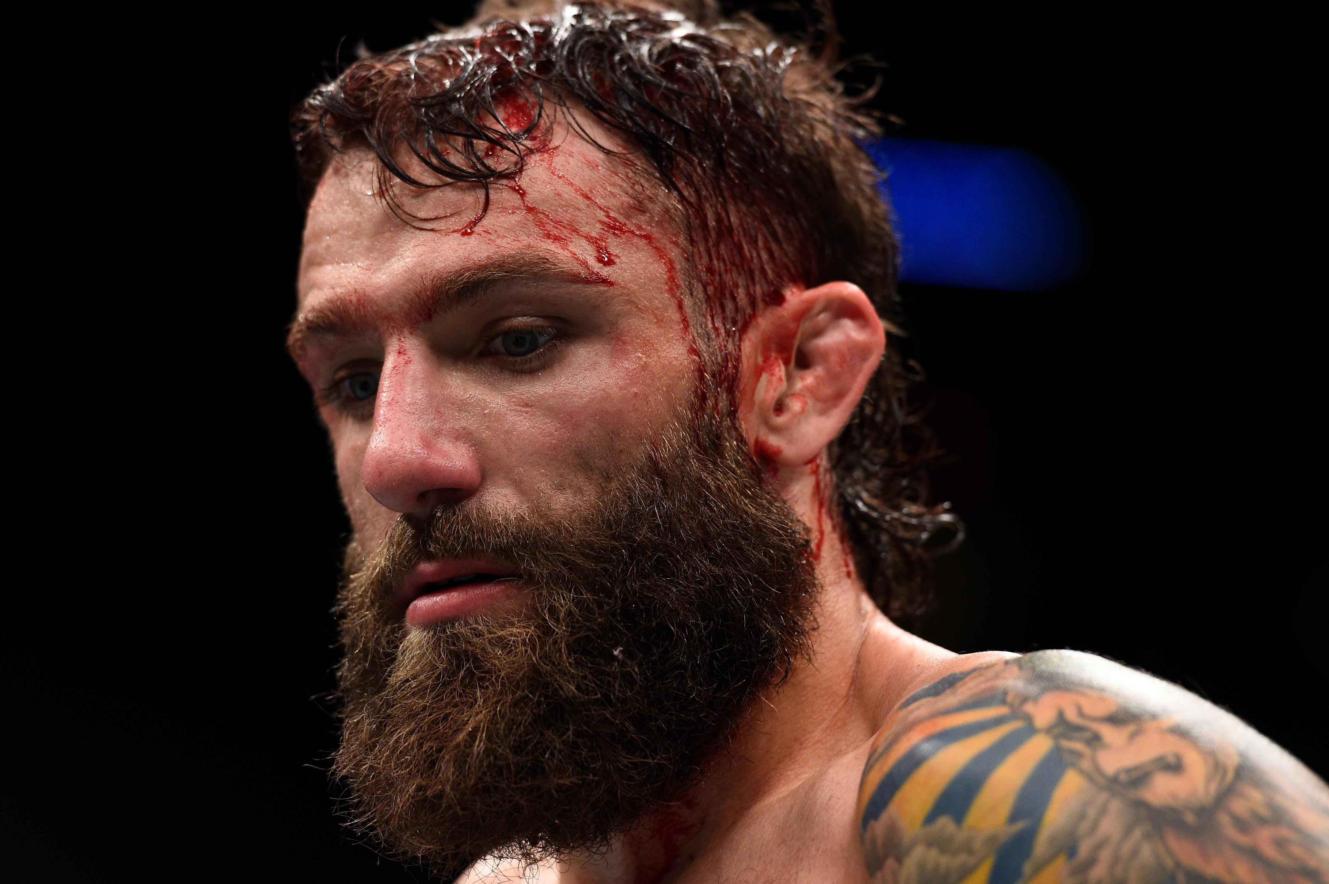 Michael Chiesa has been pulled from UFC 223 after he sustained cuts to his face