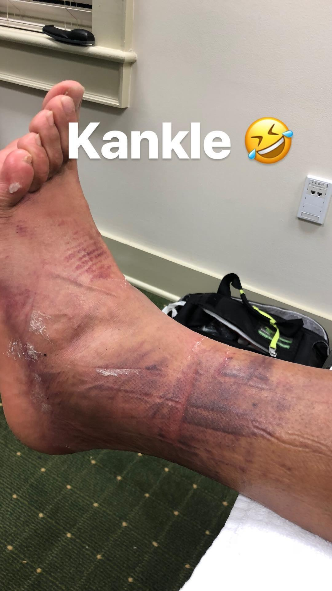 Tony Finau shows off the gruesome effects of his hole-in-one celebration