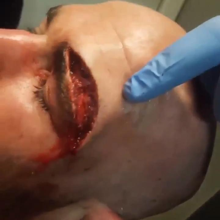 The injury went across the entire brow of the eye of Mason, and went deep