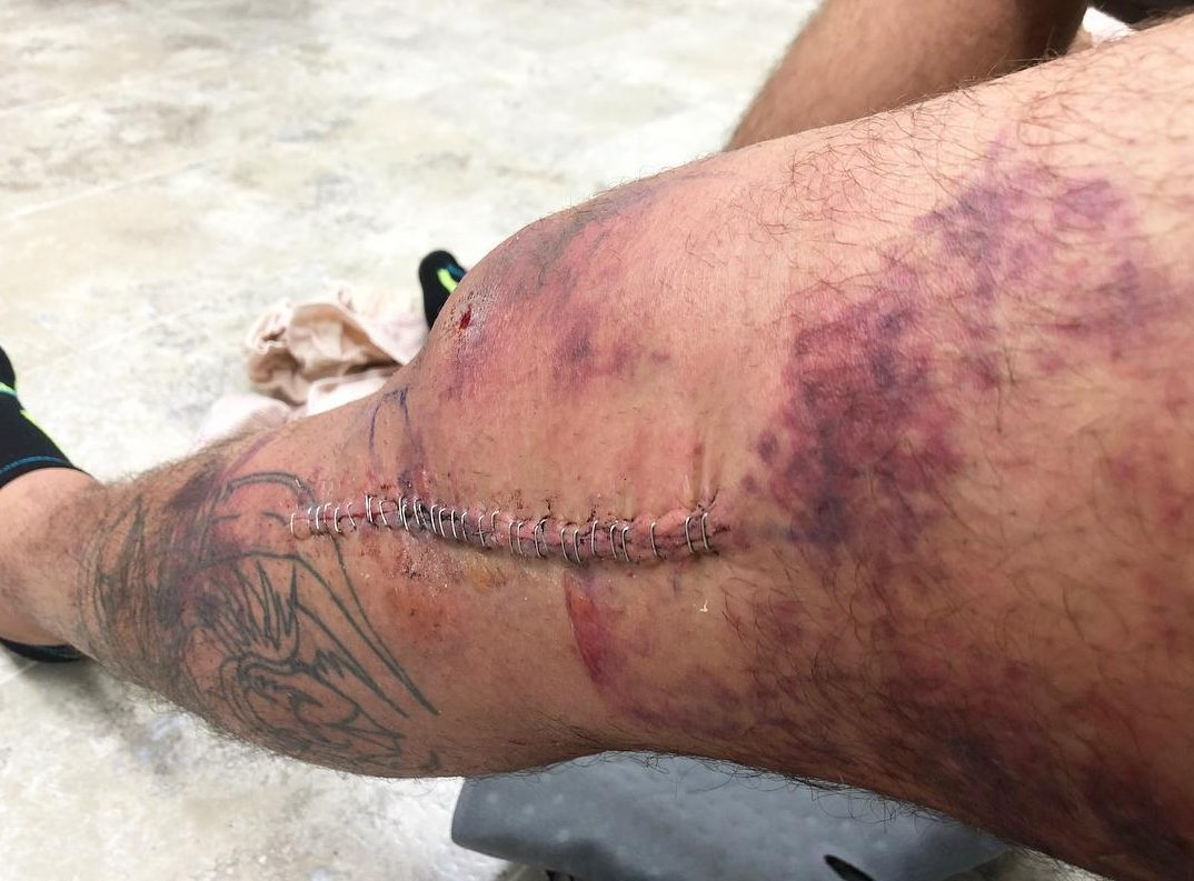 Tony Ferguson needed 31 staples after a freak accident