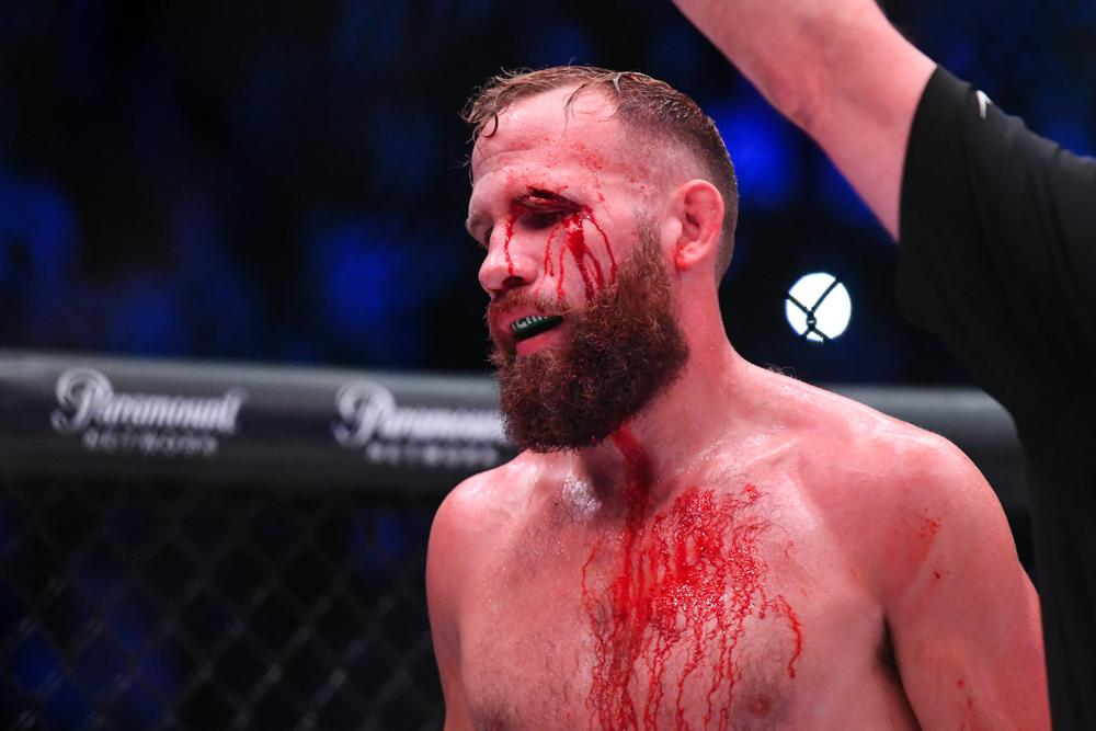 A bloody David Rickels felt he could not continue after have his eye busted
