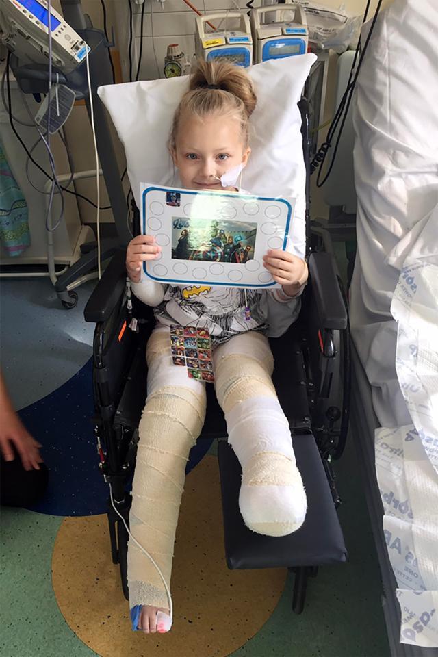 Brogan has had to learn to walk again with prosthetics