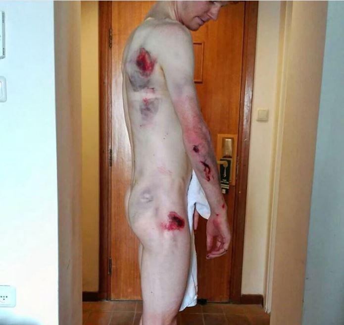 Aussie racer Jack Haig shows off his injuries after Giro D'Italia crash