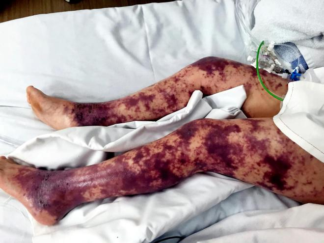 When the rash first appeared it looked like bruises, but it soon spread over her body