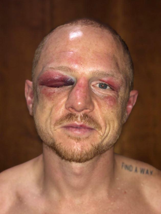 Luke Jackson posted a photo on Twitter of his brutal injuries
