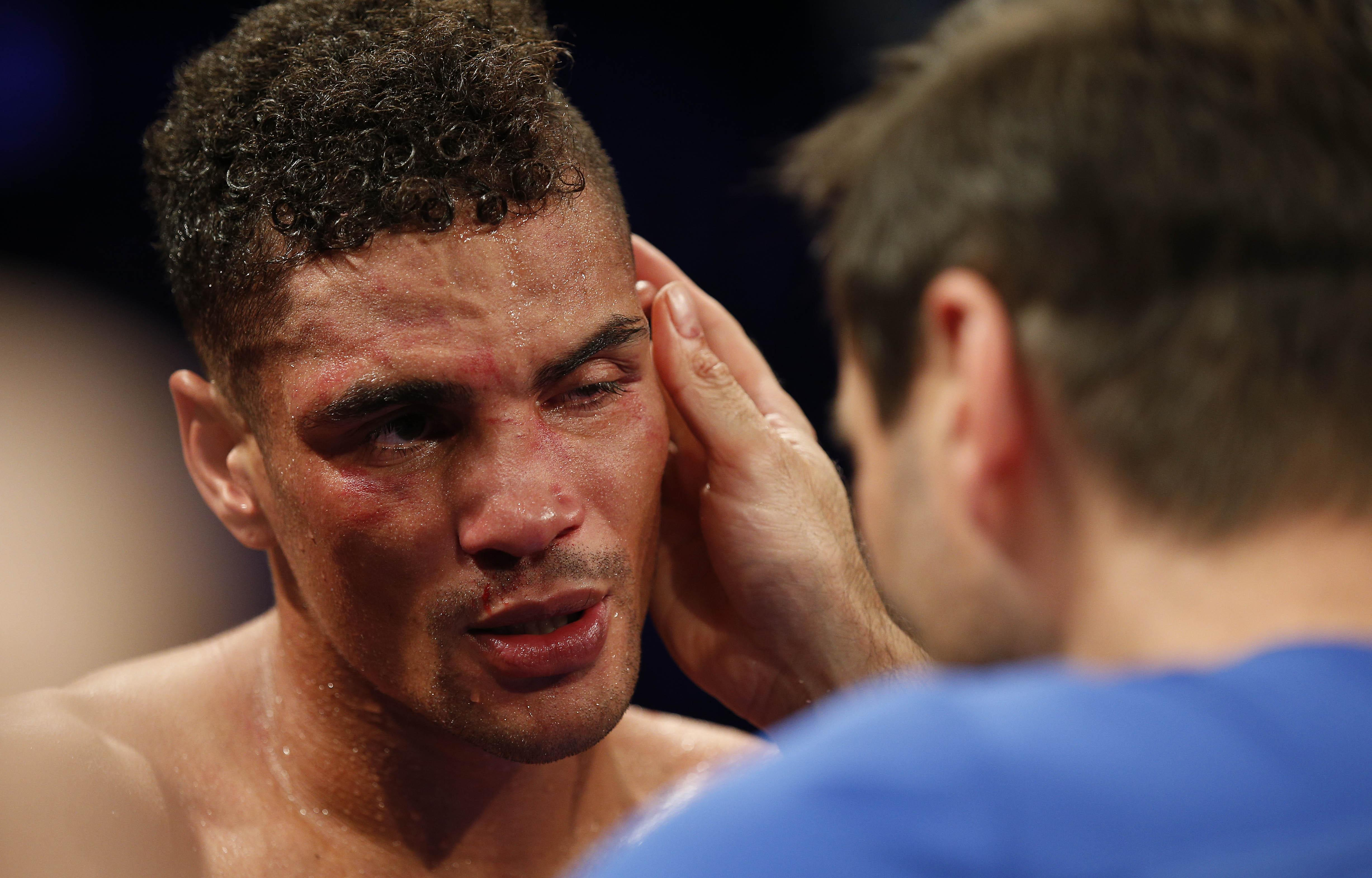 Trainer Tony Sims pulled him out of the fight after he fractured his eye socket