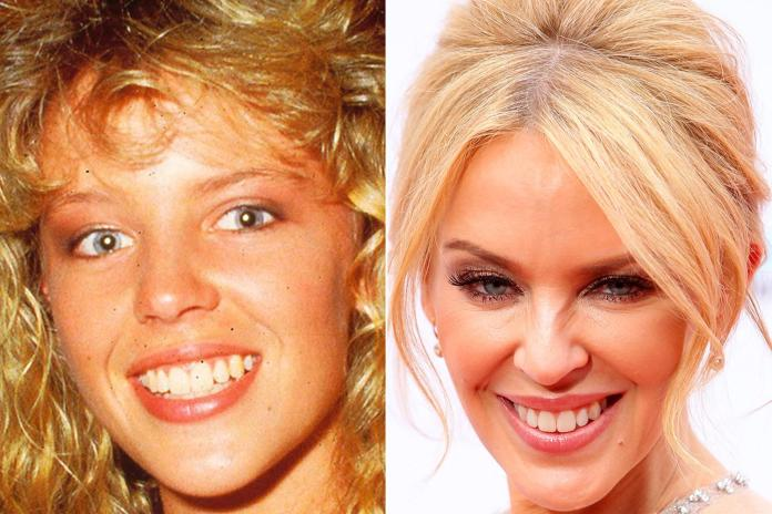 Kylie Minogue still shows plenty of her younger self