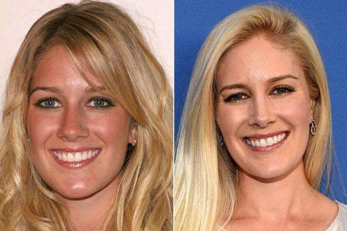 Heidi Montag also looks very similar to her younger self