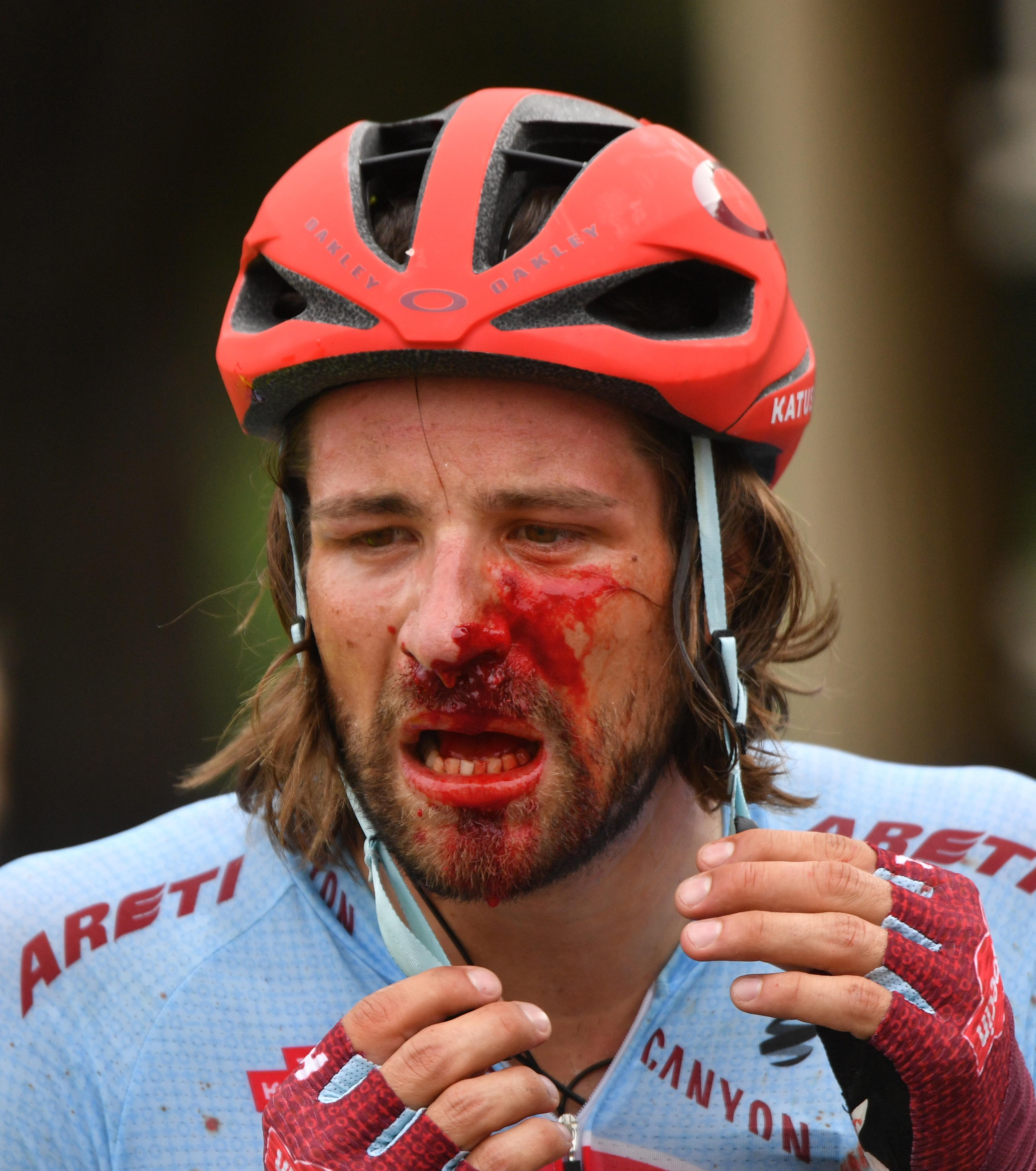 Marco Haller suffered an awful smash in the Tour Down Under