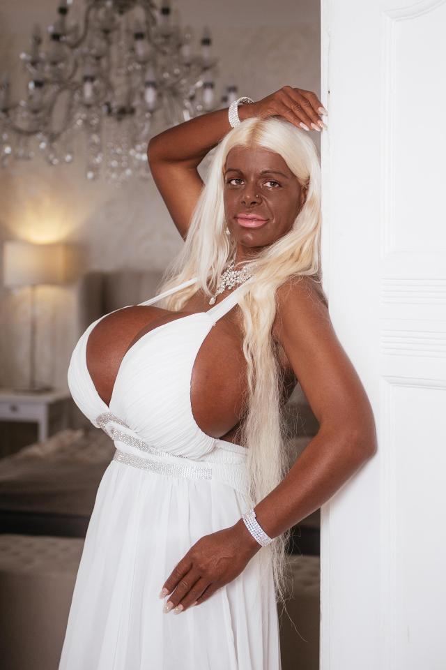 Martina has had tanning injections to turn her white Caucasian skin a deep shade of mahogany brown