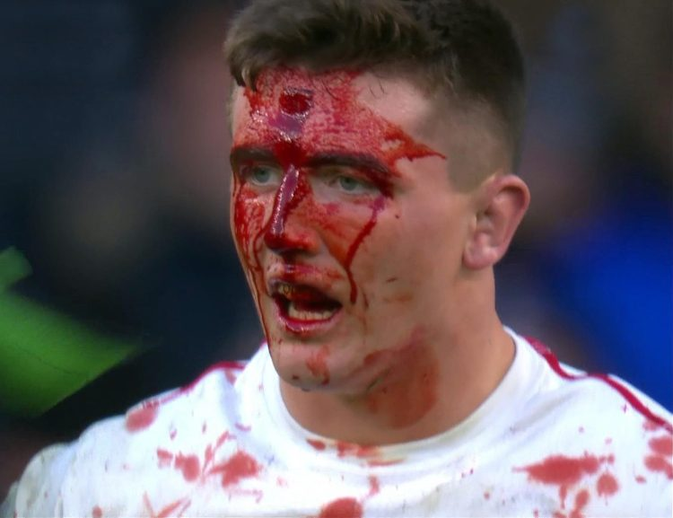 Tom Curry shrugged off this damage to play the last 28 minutes against France