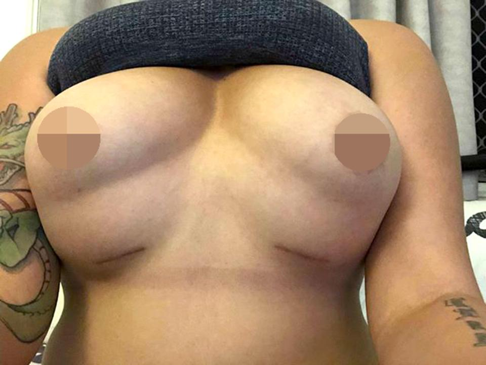 But she was horrified when she woke up and looked in the mirror, claiming she had a 'botched' op