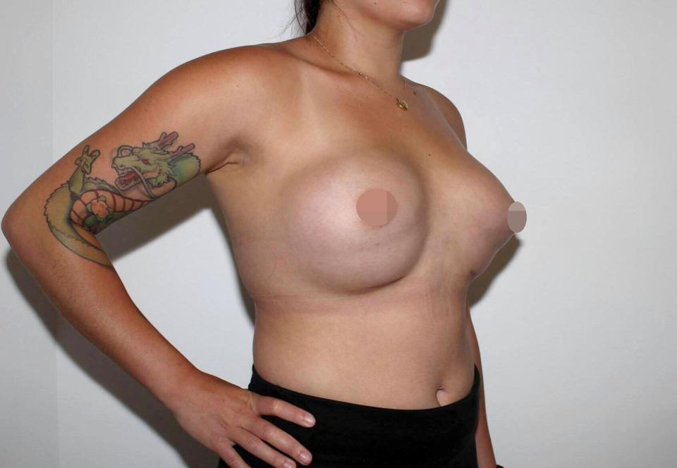 Jacqueline said she was left with 'double bubble' boobs - after the £4,500 op