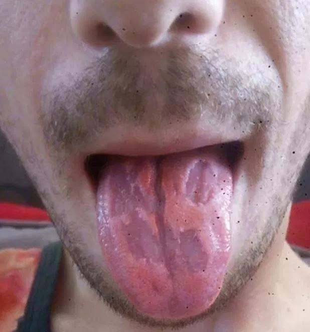Dan Royals shared this horrific photo of his tongue warning doctors told him downing six energy drinks 'ate away' at his tongue, leaving it blistered and peeling