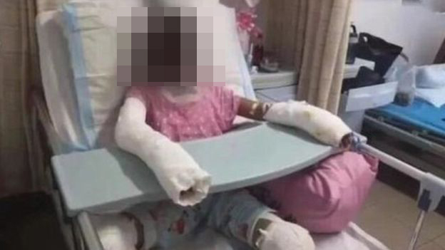 A photo published in China which is said to show the 12-year-old in hospital