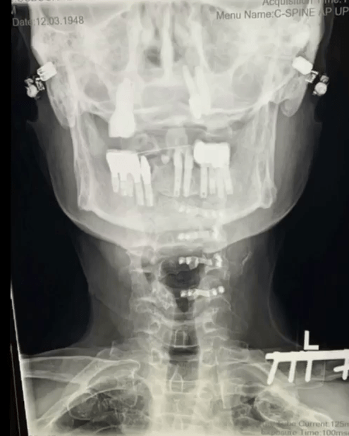 He shared images of his x-rays