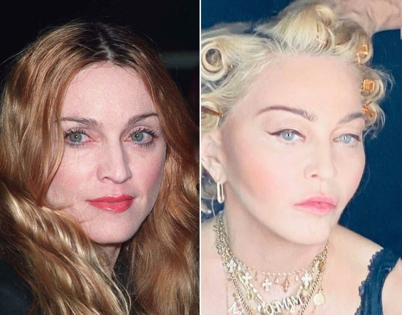 Queen of Pop Madonna has a famously smooth face