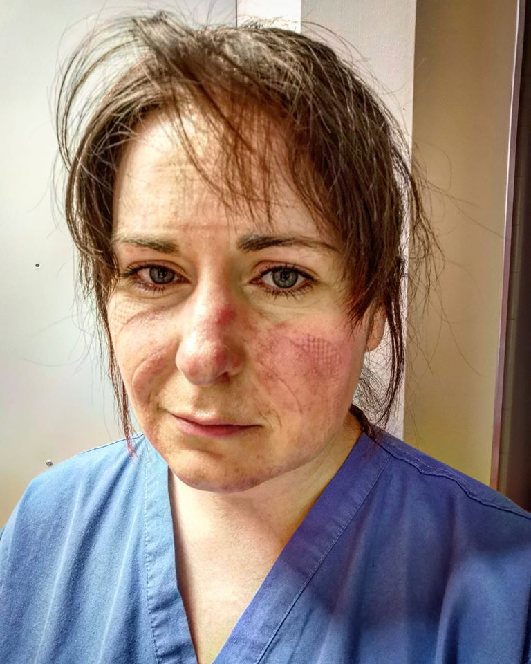 A photo already submitted shows nurse Aimée Goold with marks on her face after a shift wearing PPE