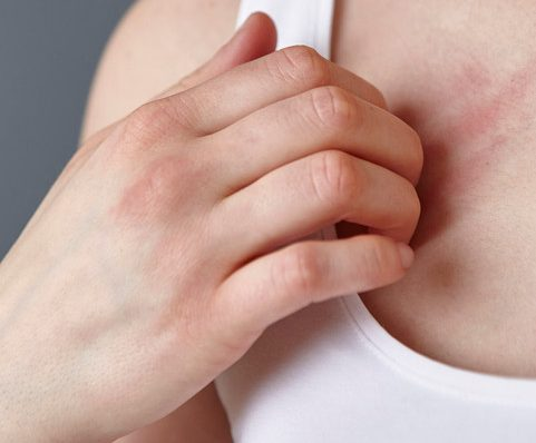 Scientists are still trying to understand why rashes have appeared in some coronavirus patients