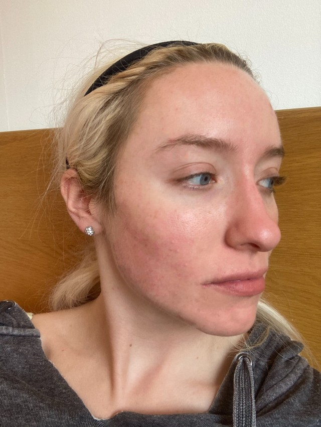 She says stress triggered adult cystic acne when she was just 18